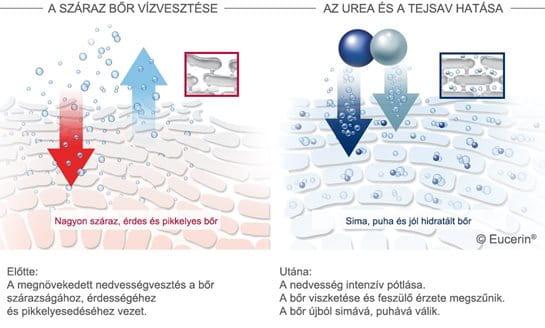 Így hat az Eucerin® 10% Urea lábápoló krém