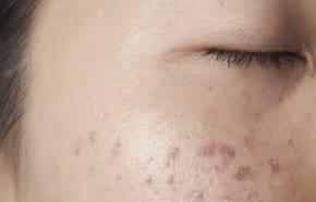 Viszket, hámlik a bőre? Ezek a bőrgyulladás okai - EgészségKalauz