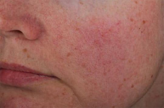Az Eucerin® Anti-Redness Bőrpír elleni arcápoló termék hatékonyságáról az In Vivo tanulmány során készült fotók